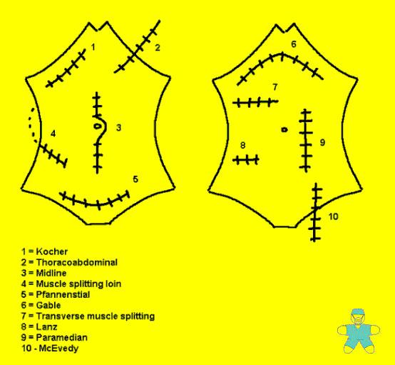 lower abdominal incision diagram online wiring diagram. Black Bedroom Furniture Sets. Home Design Ideas