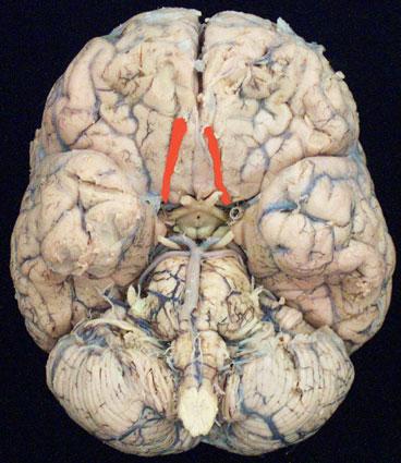 Module - Cranial Nerves