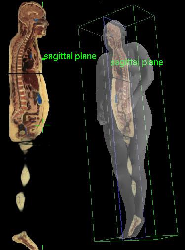 Module - Anatomical Orientation