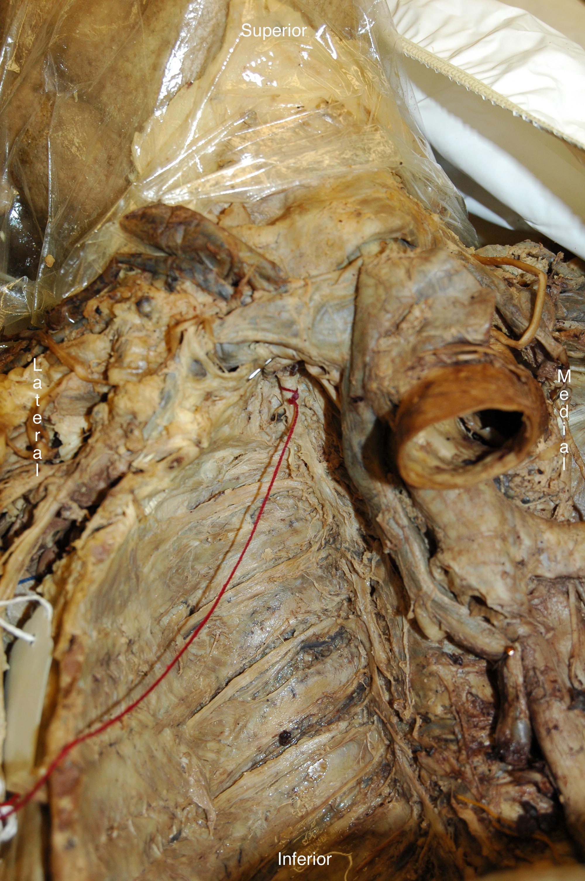 Anatomy Tables - Posterior Mediastinum