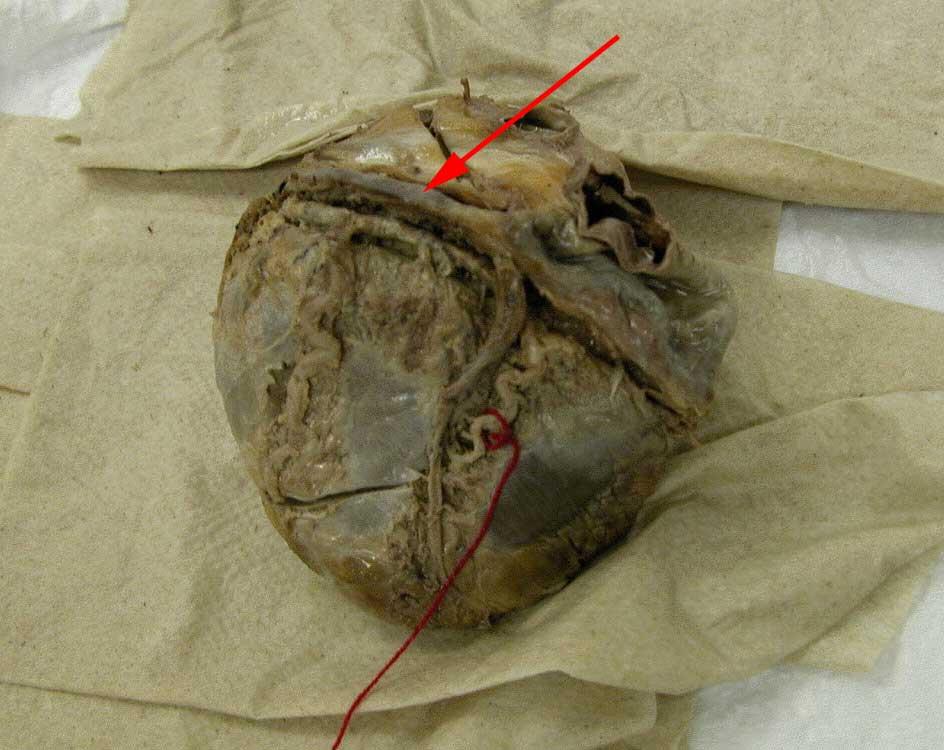 Anatomy Tables Heart