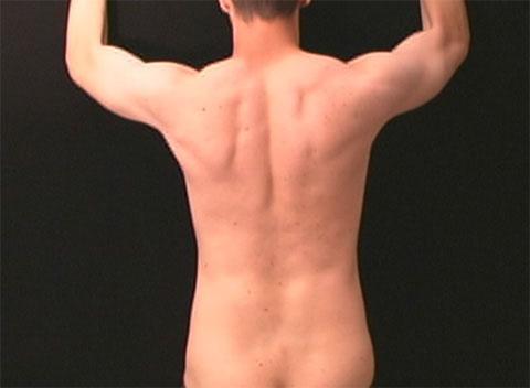 Surface Anatomy - Back