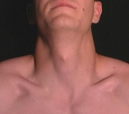 Surface Anatomy Larynx