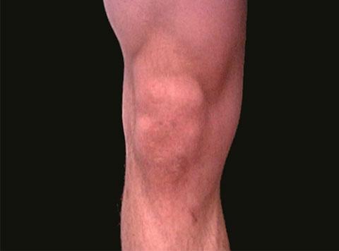 Surface Anatomy Knee