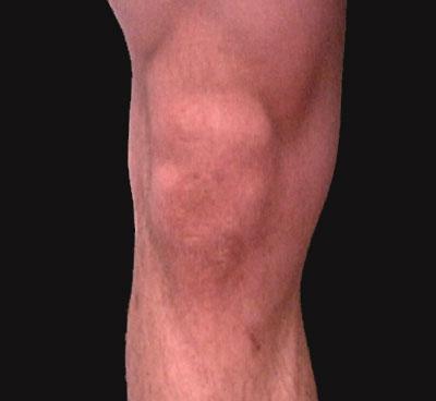 Surface Anatomy - Knee