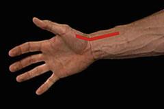 radial artery location